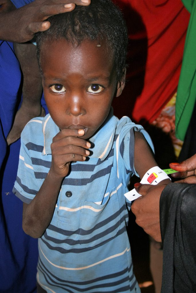child arm measurement food crisis in Somalia